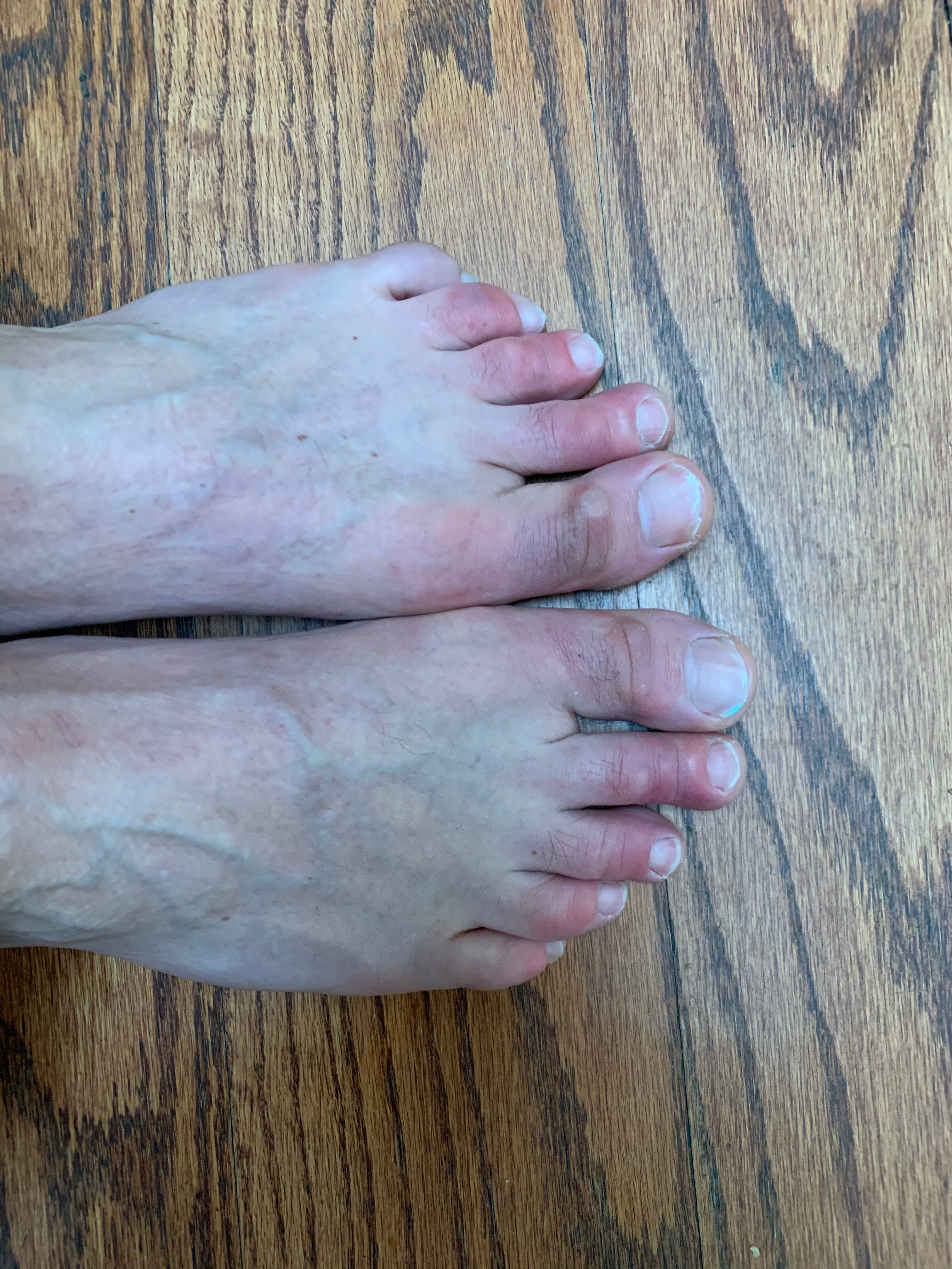 Image of COVID toes
