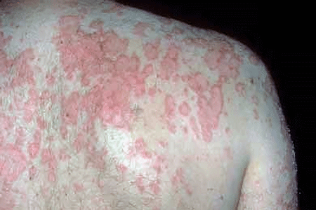 Subacute cutaneous lupus on the upper back