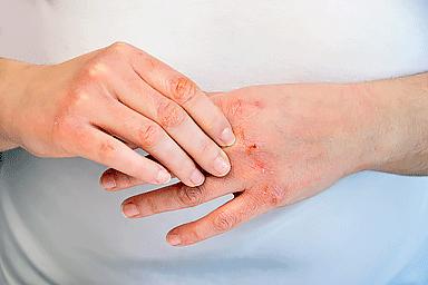 atopic eczema on fingers