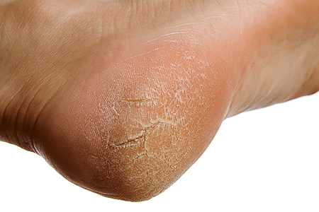 Close-up of a dry, cracked heel on a woman's foot