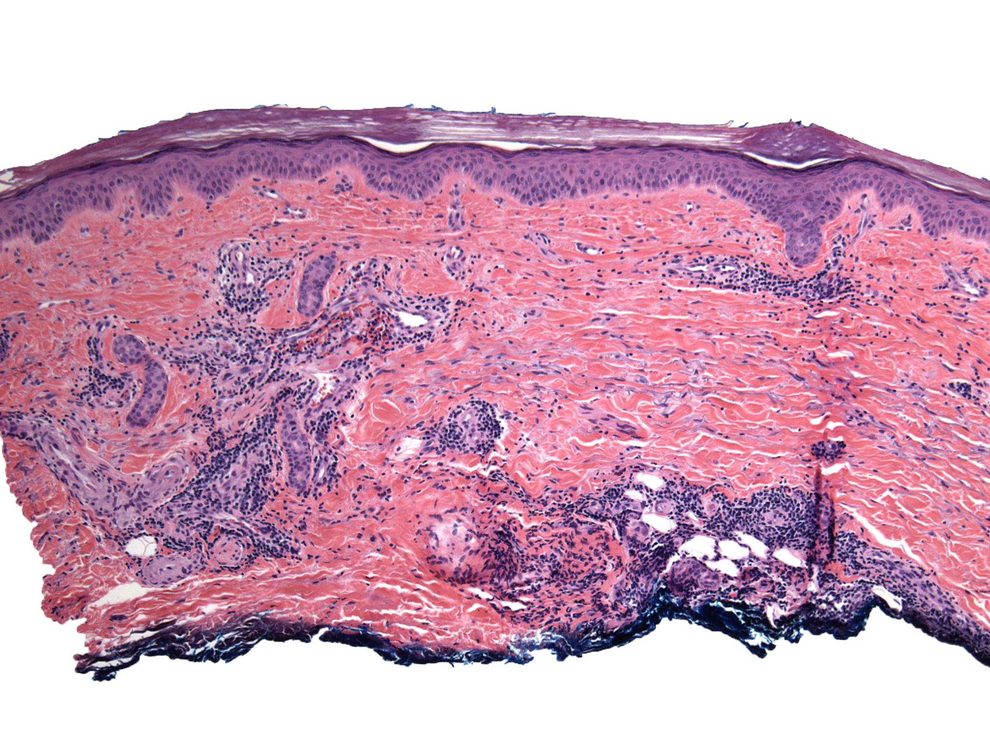 Image for derm manifestations of covid-19 in vmx news