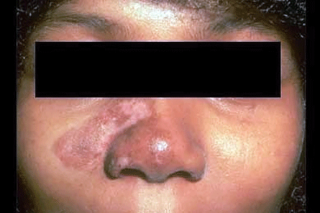Discoid lupus treatment can prevent scars