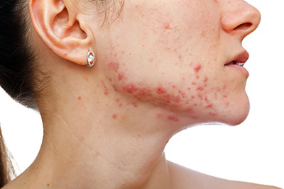 Woman with acne along jaw line