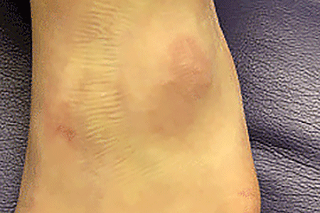 Subcutaneous granuloma annulare on skin