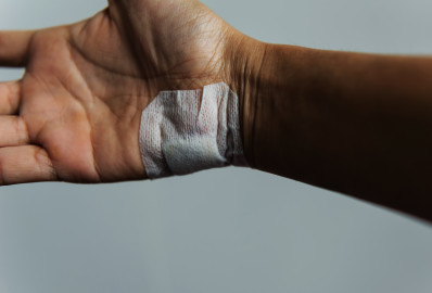 Injured hand with silicone bandage sheet