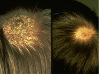 two pictures of scalp with ringworm