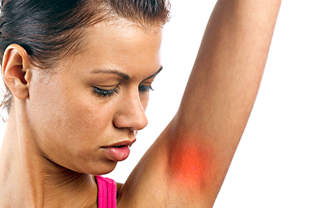 A woman with sore skin in her armpit.