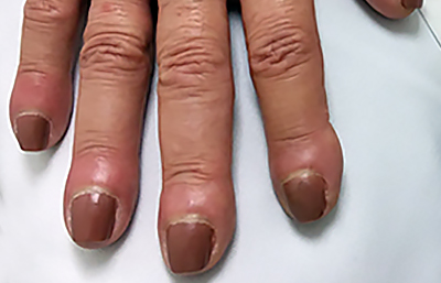 Clubbing causes nails to curve down
