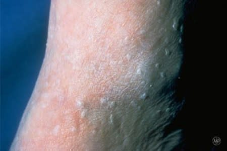 Seborrheic keratoses can look like stucco splattered on the skin