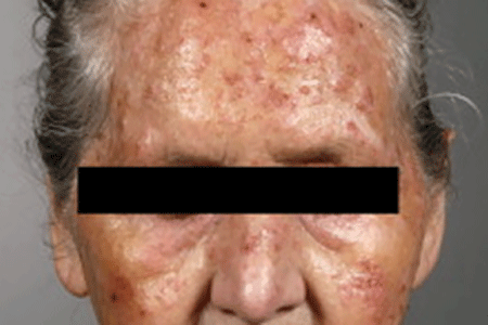 Several spots on this woman's forehead, nose, and cheeks are actinic keratoses