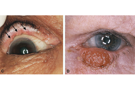 Side-by-side comparison images of two different patients with sebaceous carcinoma on their eyelids