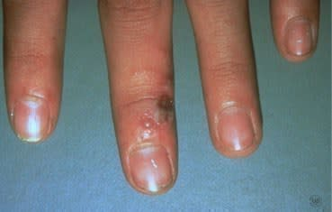 Herpes simplex sores on hand