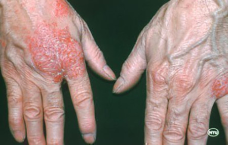 Nummular dermatitis blisters on hands