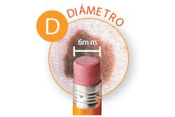 Public>Diseases>Skin-cancer>Types>Melanoma>Symptoms>Diameter (Spanish)