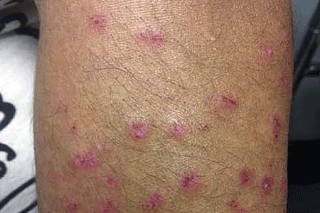 Drug-induced lupus on leg