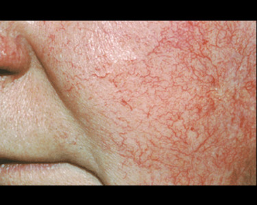 rosacea on cheek