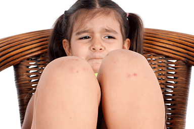 Little girl with bumps on her knees