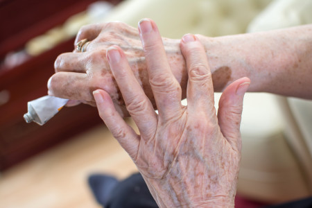 Close-up of elderly woman's hands applying cream from tube