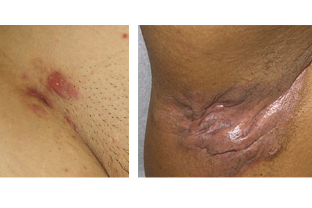 Pictures of early and advanced Hidradenitis suppurativa.