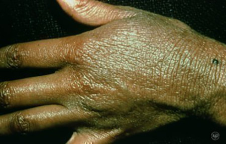 Years of scratching caused permanently thickened skin on this woman's hand and wrist.