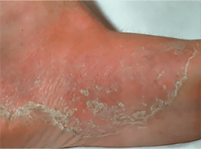 Ringworm infection on sole of foot