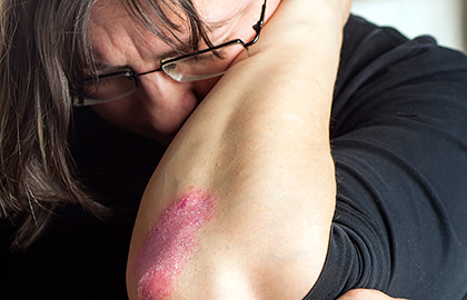 Anguished woman with psoriasis on elbow