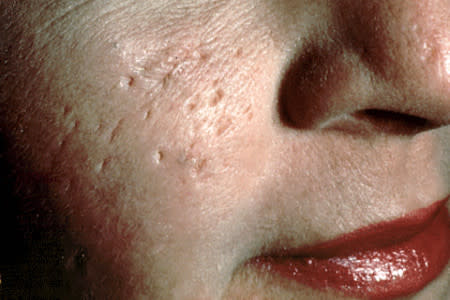 Deep acne scars on woman's cheek