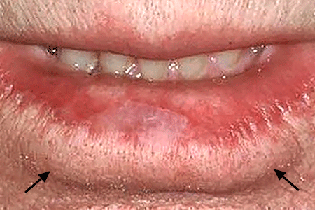 The color in this man's lower lip has disappeared, a sign of a precancerous skin condition called actinic kearatosis