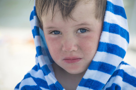 A little boy with red, irritated face with a towel over his head