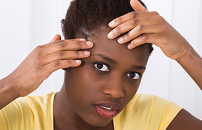 African-American woman with acne near hair line