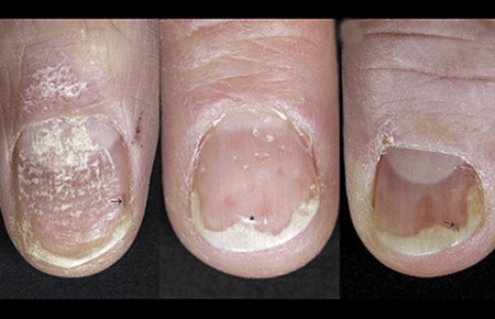 Types of psoriasis on nails