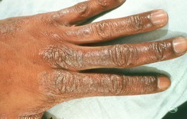 hand with dry skin