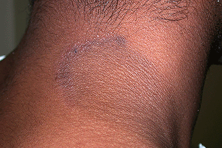 Neurodermatitis rash