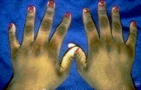 Acanthosis nigricans on 15-year old girl's hands