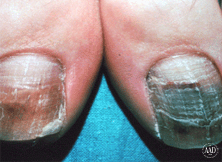 Nails with ringworm infection