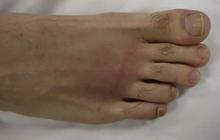 Swollen psoriatic arthritis foot
