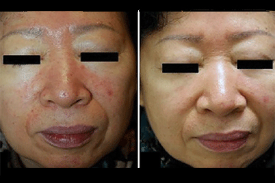 Rosacea Treatment Acne Like Breakouts