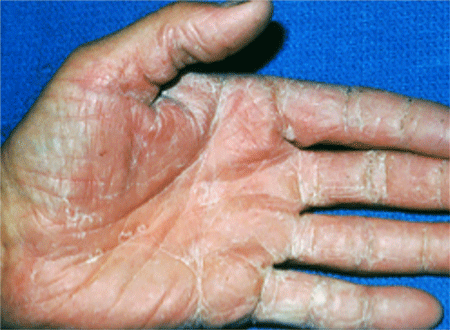 Hand with a ringworm infection