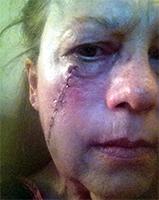 Public>Public-health>Skin-cancer-awareness>Story>Sheila-Schnauzies