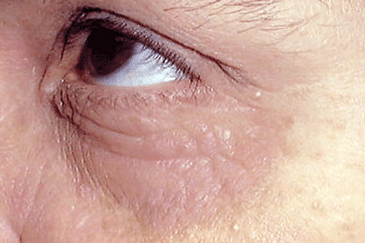 In adults, atopic dermatitis often develops on skin around the eyes.
