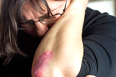 Unhappy woman with psoriasis on her elbow