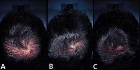 three photos showing a man's head before and after finasteride treatment