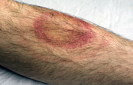 Rash from Lyme disease begins to clear on leg
