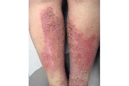 Eczema types: Stasis dermatitis signs and symptoms