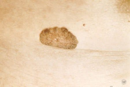 Close-up of seborrheic keratosis, a non-cancerous growth with a thick and warty surface.