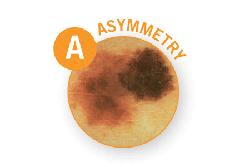 Public>Diseases>Skin-cancer>Types>Melanoma>Symptoms>Asymmetry