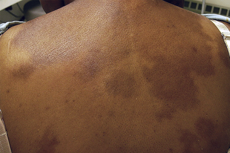 Scleroderma patches of hard, thickened skin on the back