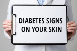 Image for 12 signs of diabetes on your skin navigation feature