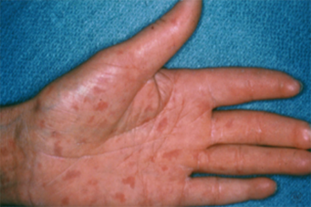 Visible blood vessels on palm of hand from scleroderma