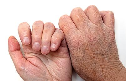 wrinkled skin on hands